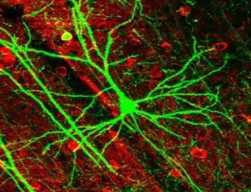Una terapia celular 'congela' la progresión de la Esclerosis Múltiple durante más de 5 años